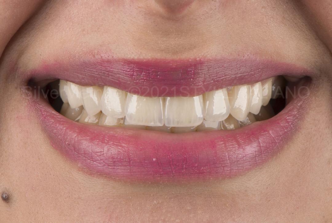 smile of patient happy with veneers style italiano styleitaliano