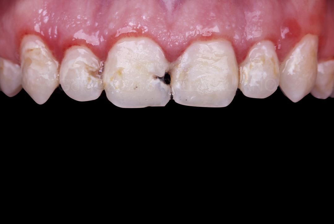 Teeth with gingivitis and multiple caries style italiano styleitaliano
