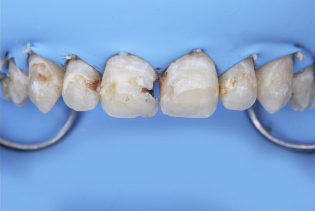 Rubber dam isolation of anterior teeth style italiano styleitaliano
