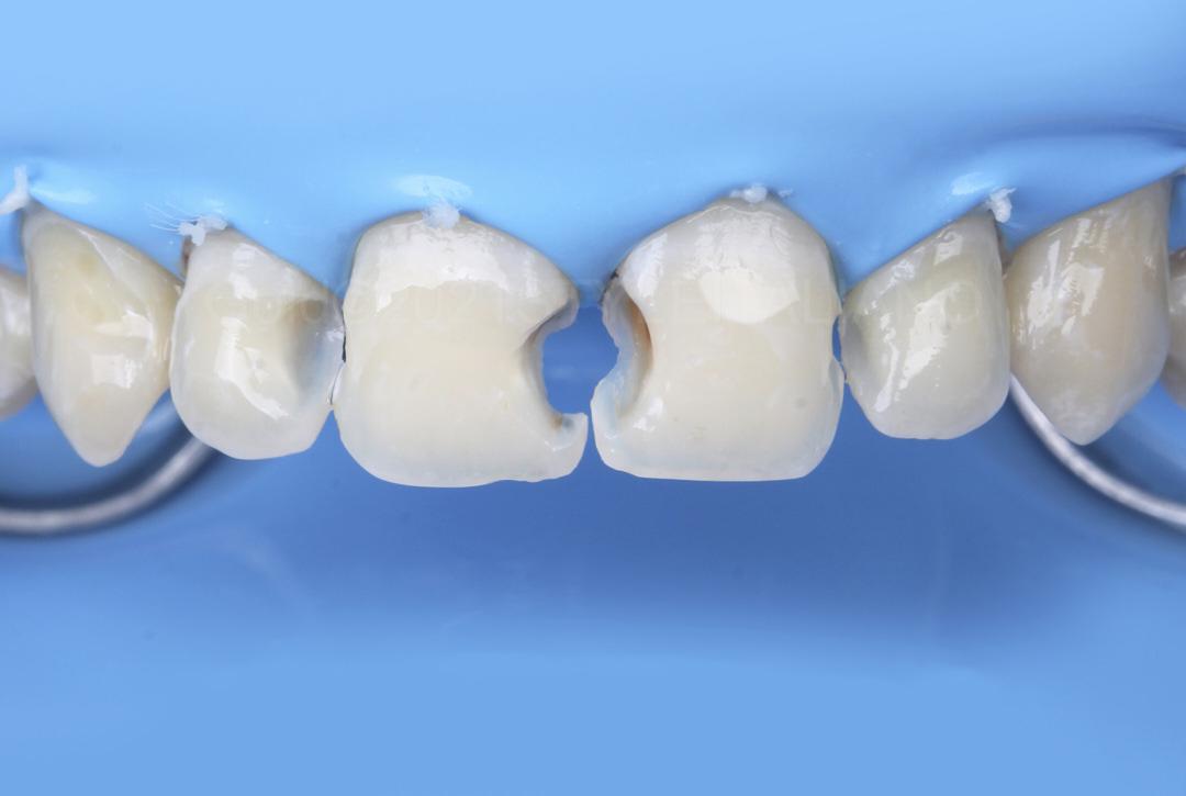 Clean cavities under rubber dam isolation style italiano styleitaliano