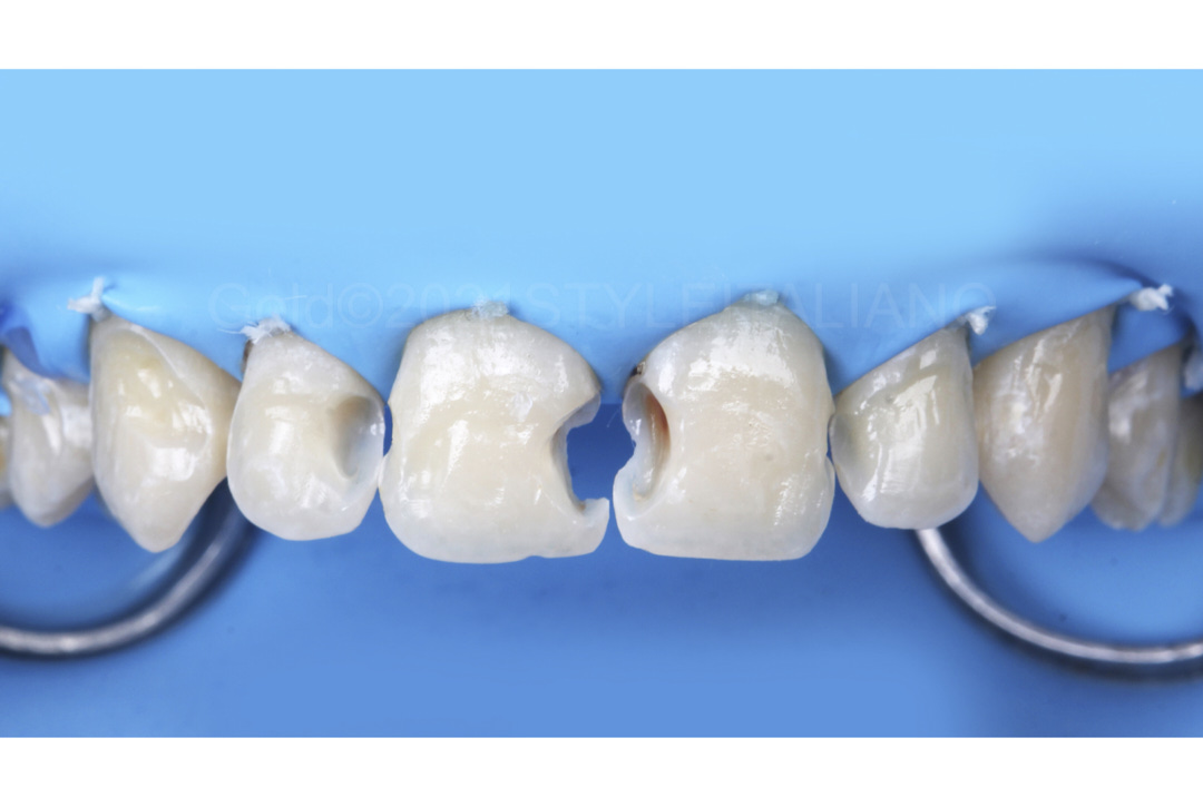 clean and bonded cavities ready for composite restoration style italiano styleitaliano