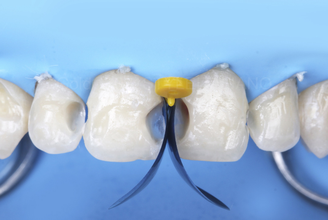 proximal matrices in place for class 3 cavity restoration style italiano styleitaliano