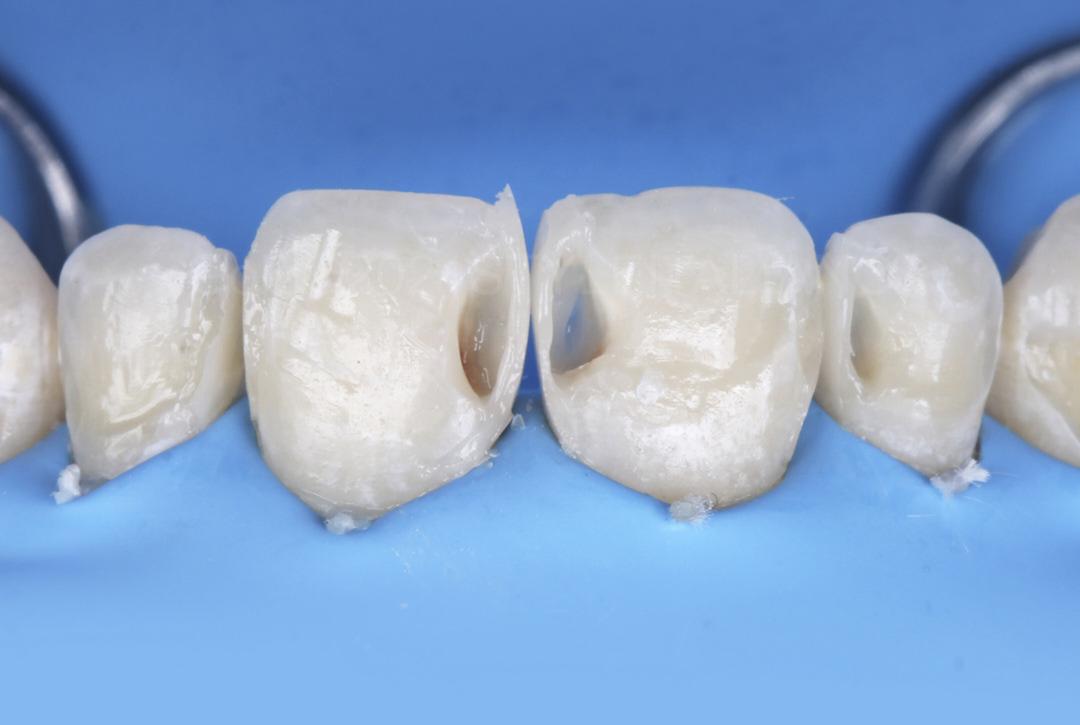 proximal wall build up to restore class 3 cavities styleitaliano style italiano