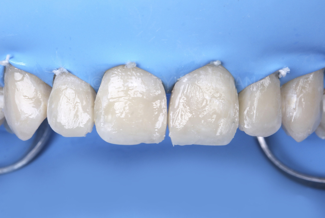 dentin composite layered style italiano styleitaliano