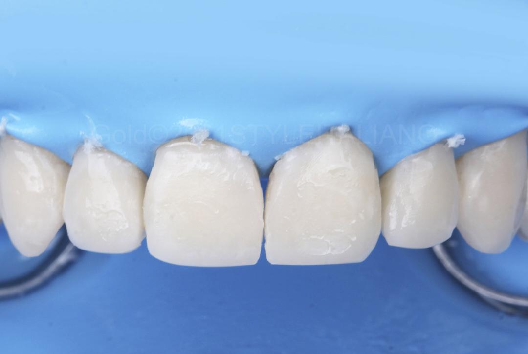 filled cavities before finishing style italiano styleitaliano