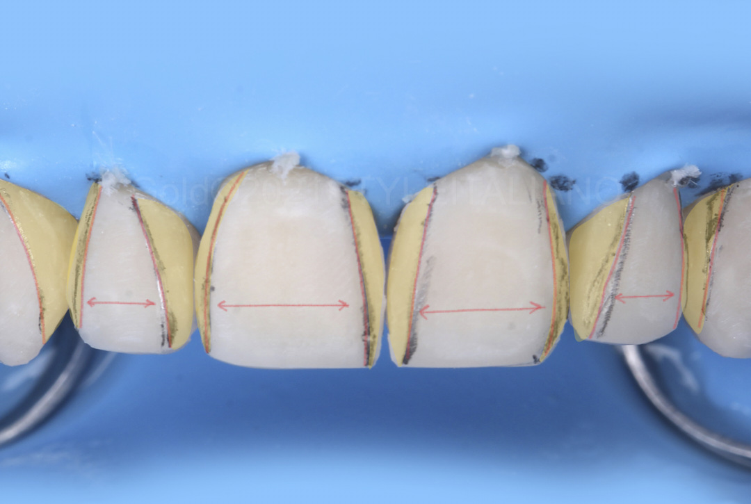 management of angle line finishing for symmetry of incisor group style italiano styleitaliano