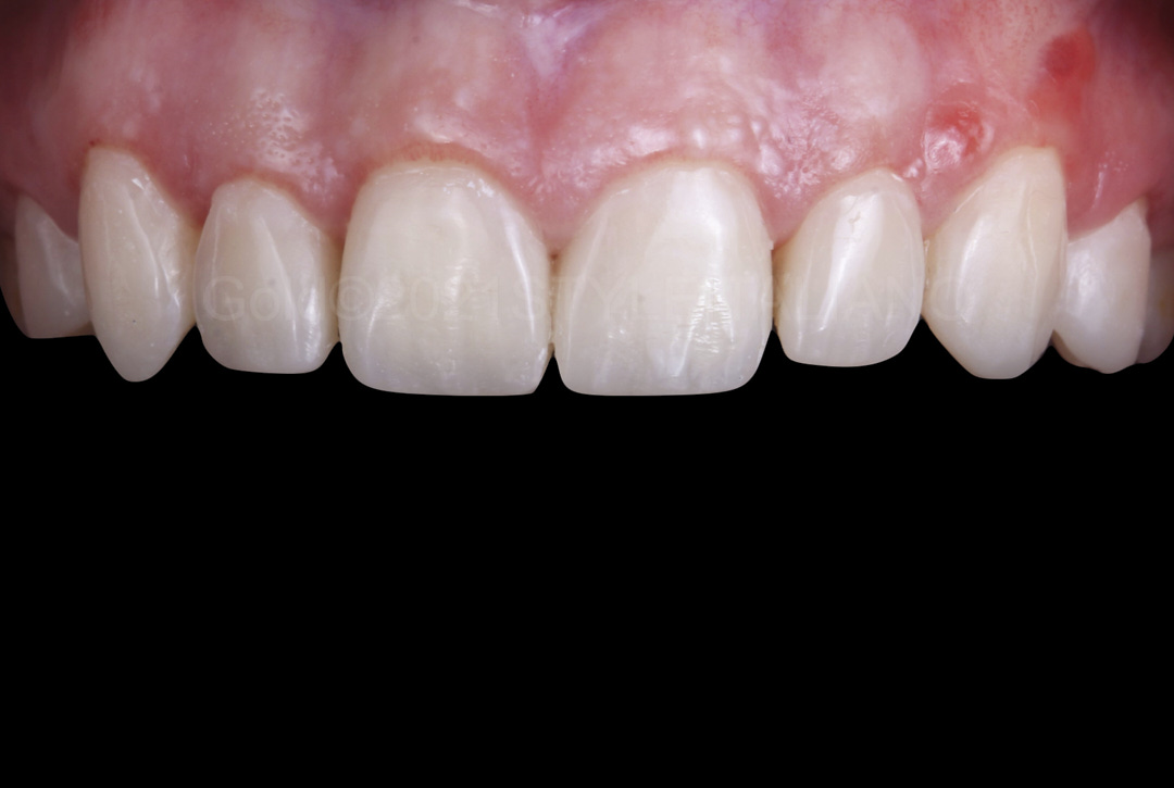 teeth restored with direct composite restorations style italiano styleitaliano