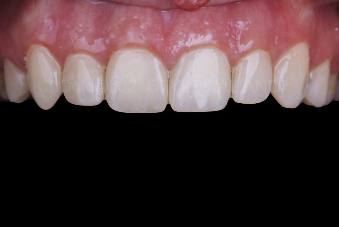 smile restored with composite resin style italiano styleitaliano