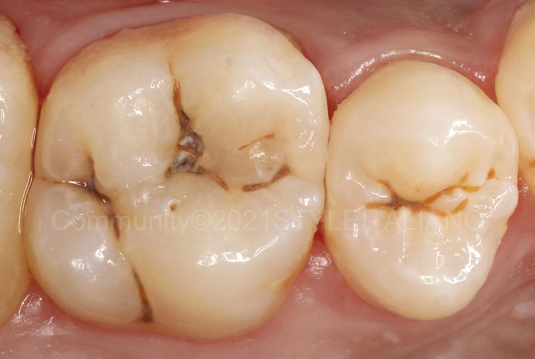 premolar and molar with caries style italiano styleitaliano