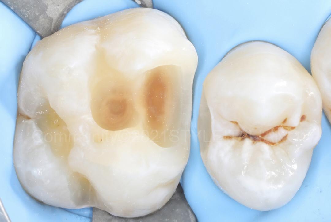 clean proximal cavities style italiano styleitaliano