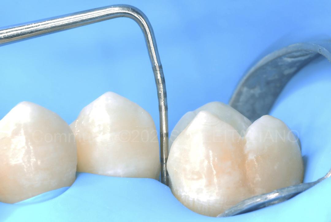 probe measuring tooth height style italiano styleitaliano