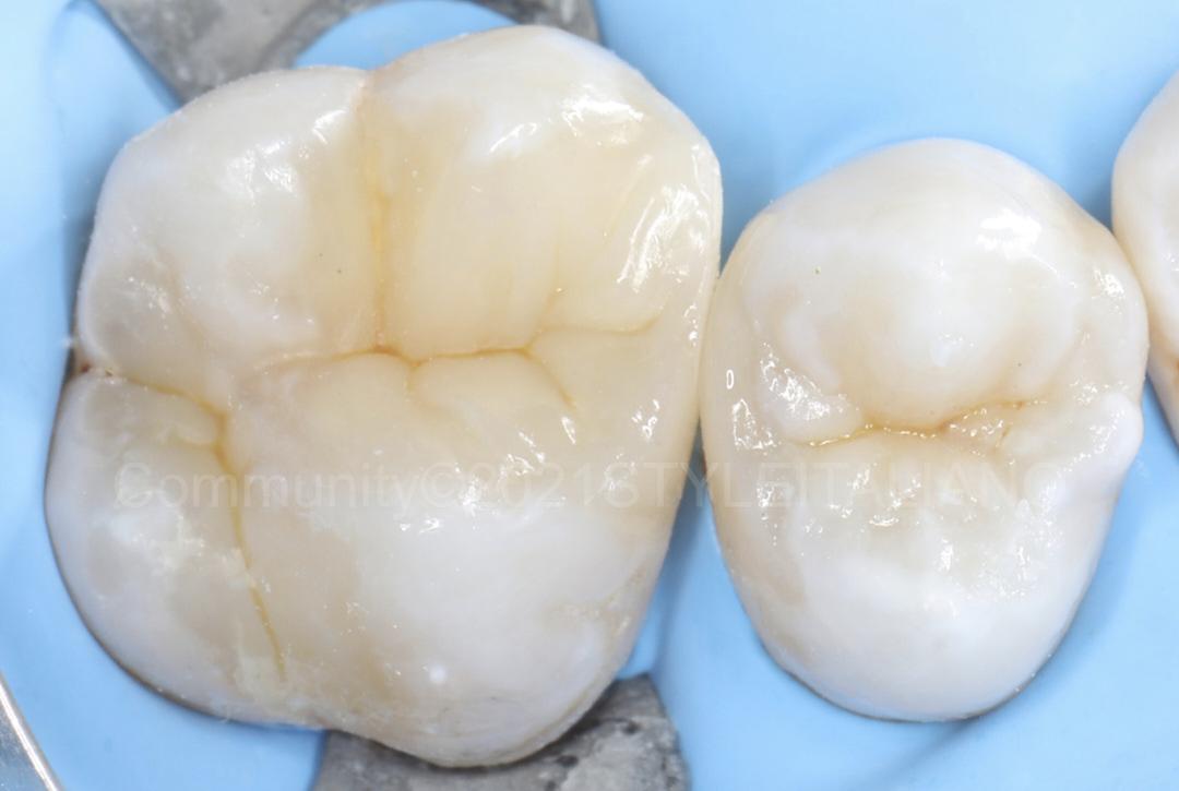 occlusal cavity restoration on upper premolar styleitaliano style italiano