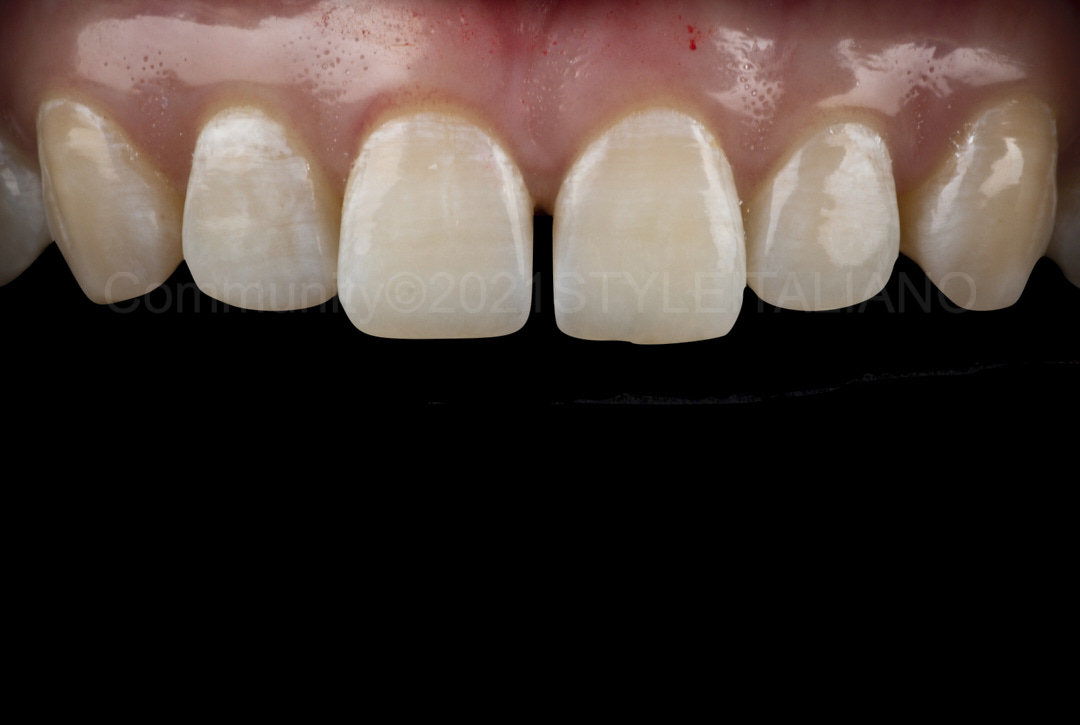 middle diastema between central incisors style italiano styleitaliano