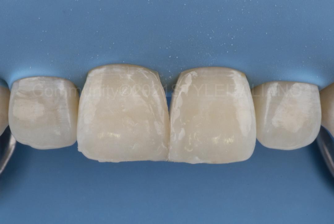 composite incisor restorations before finishing styleitaliano style italiano