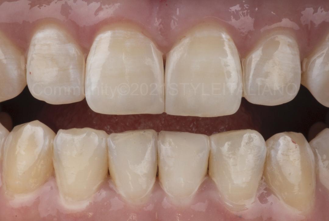 teeth after diastema closure style italiano styleitaliano