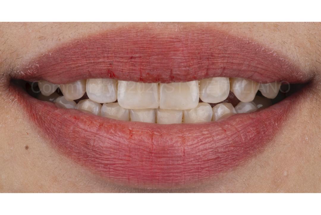 smile after diastema composite restoration style italiano styleitaliano