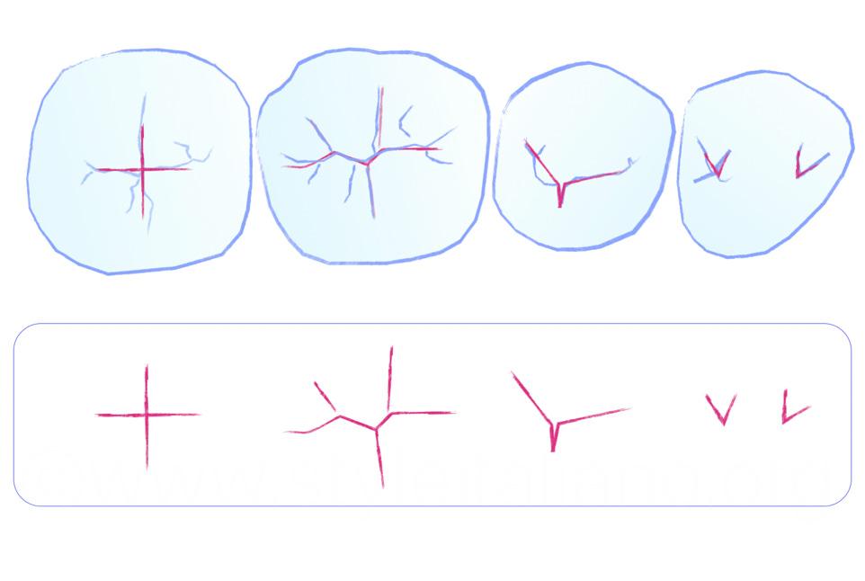 essential lines in lower posterior dental anatomy