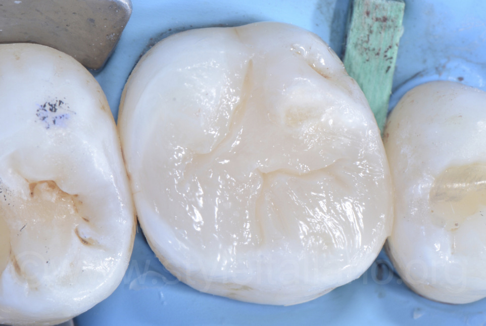 anatomy with essential lines on upper molar composite