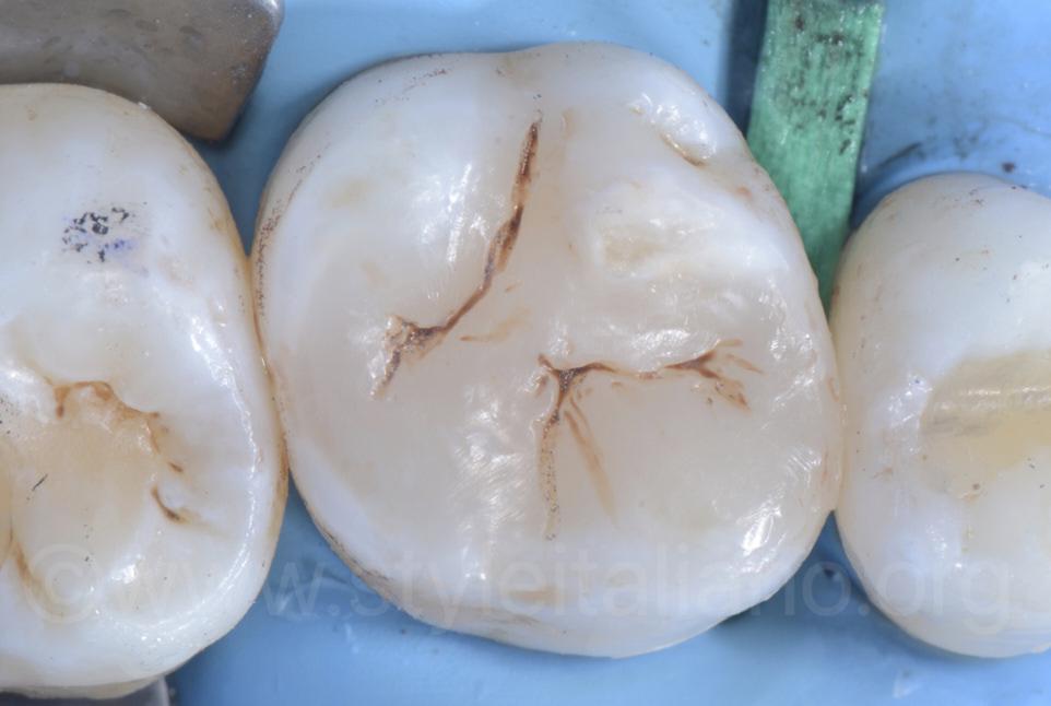 finished composite restoration on upper molar