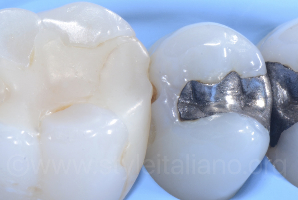 proximal cavity and old composite and amalgam