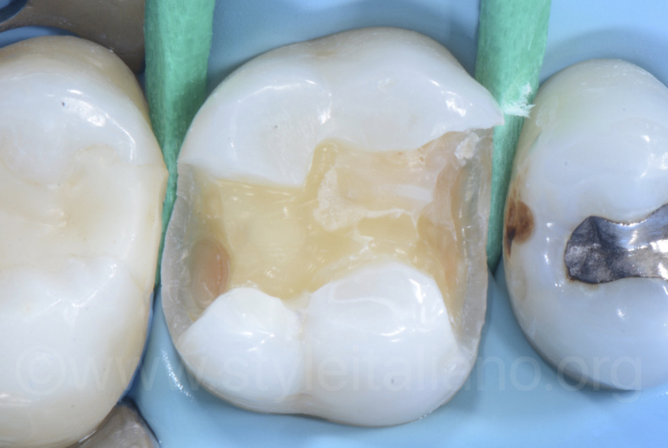 MOD cavity and proximal caries