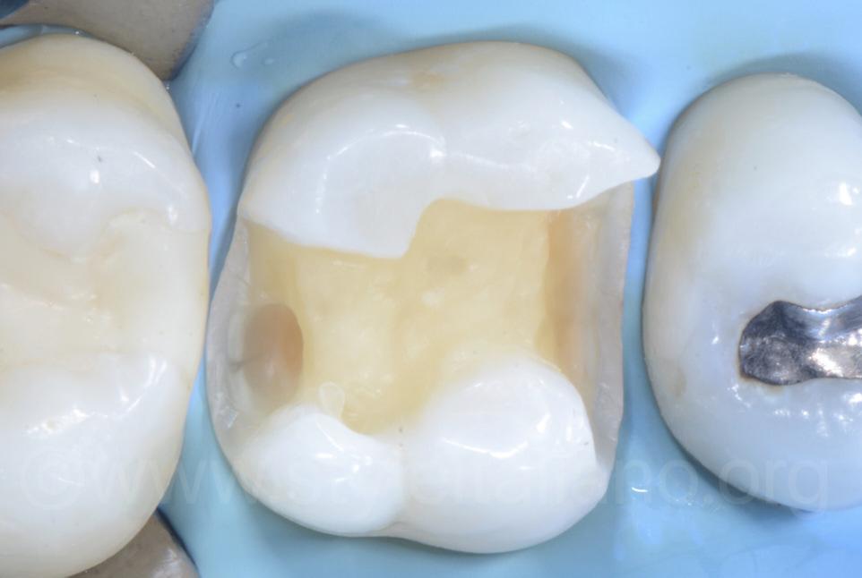 clean MOD cavity on upper molar