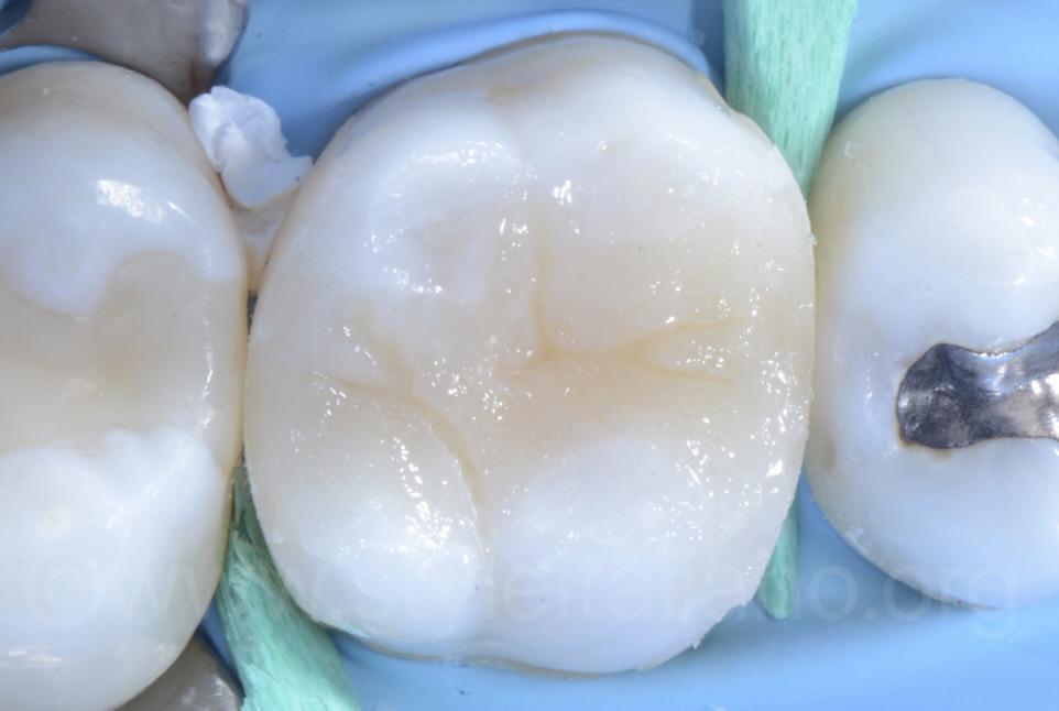 essential lines for groove dental composite restoration