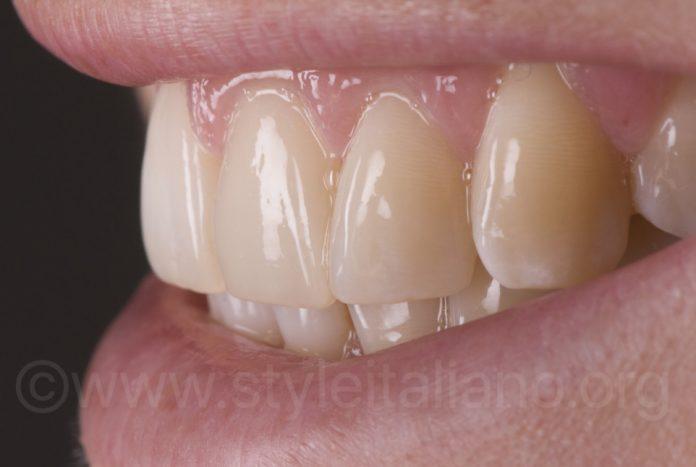 beautiful smile with white teeth styleitaliano style italiano