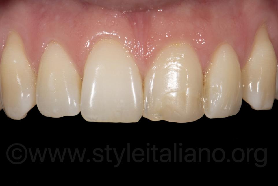 ugly composite restoration on upper central incisor