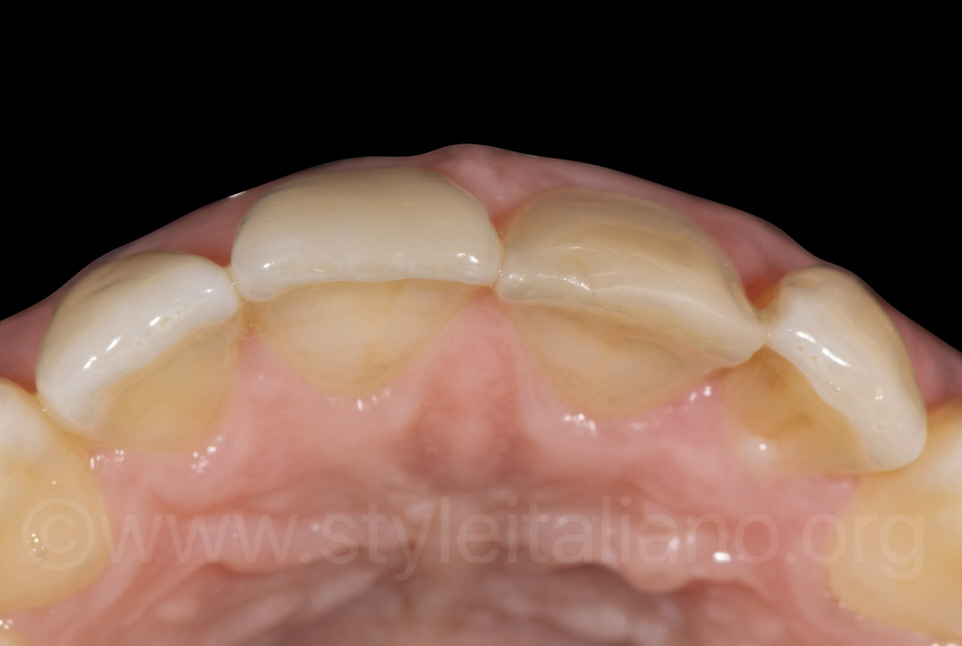 occlusal view for buccal anatomy assessment