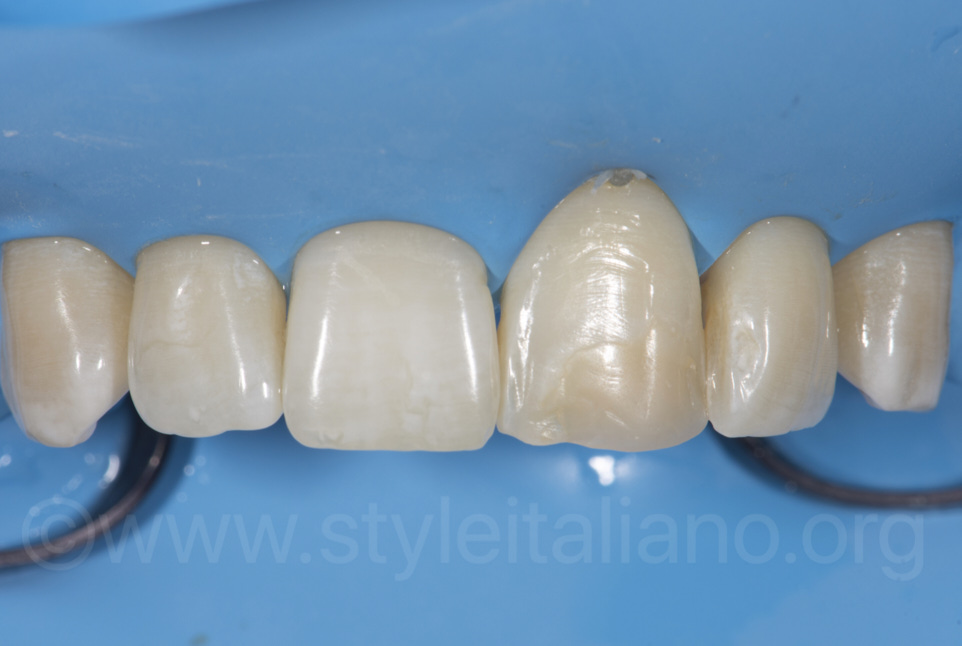 rubber dam isolation on central incisor
