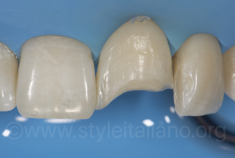class 4 cavity preparation and bevel on central incisor