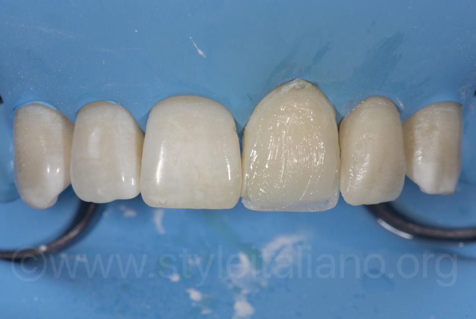 composite layering for direct veneering