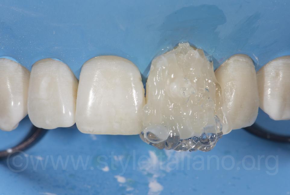 glycerine gel for final light curing of composite