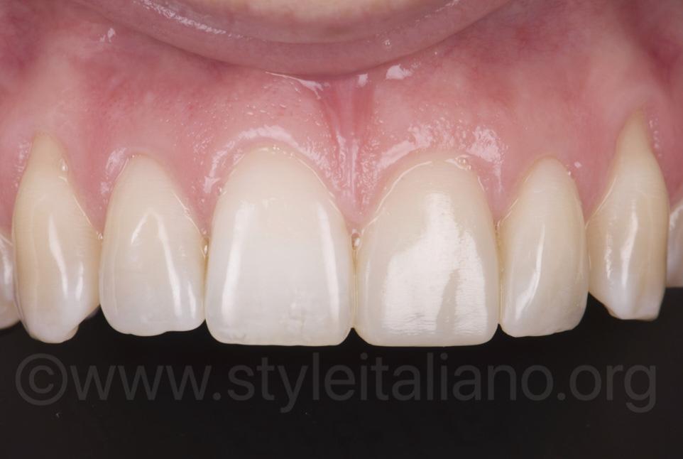 composite veneer on left central incisor